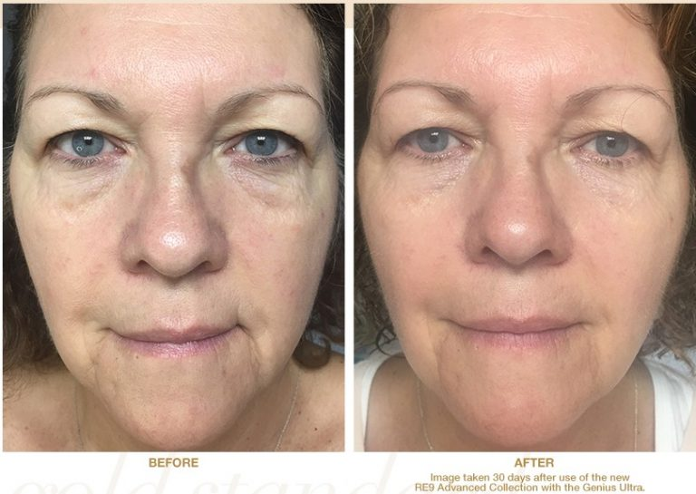 Results after 30 Days using RE9 Advanced